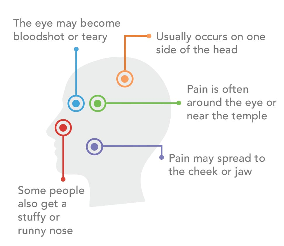 Diagram of a cluster headache