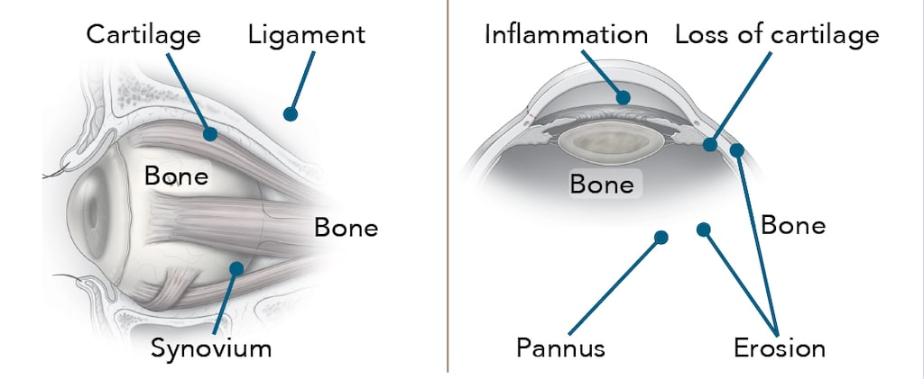 RA Joints Diagram