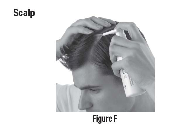 Figure F - Part your hair when applying to your scalp. Spray on to the affected area then rub in gently and completely.