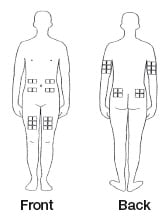 The best sites for giving a subcutaneous injection are those areas with a layer of fat between the skin and muscle. These include the thigh, the outer surface of the upper arm, the stomach and the buttocks. Do not use the area near your waistline or within 2 inches of your navel.