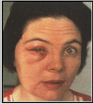 Image of smallpox vaccine virus that's been accidentally spread.