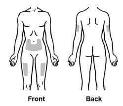 Injection sites include the front of the middle thigh, the stomach area (except for the 2-inch area right around the navel), the outer area of the upper arm (only if someone else is administering the injection) image.
