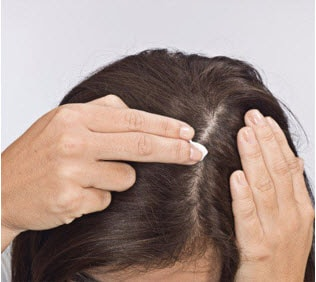 Part your dry hair and apply Sorilux directly to the affected with your fingertips.