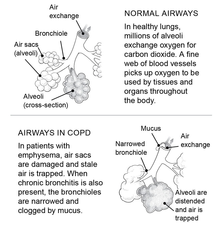 how copd affects the lungs