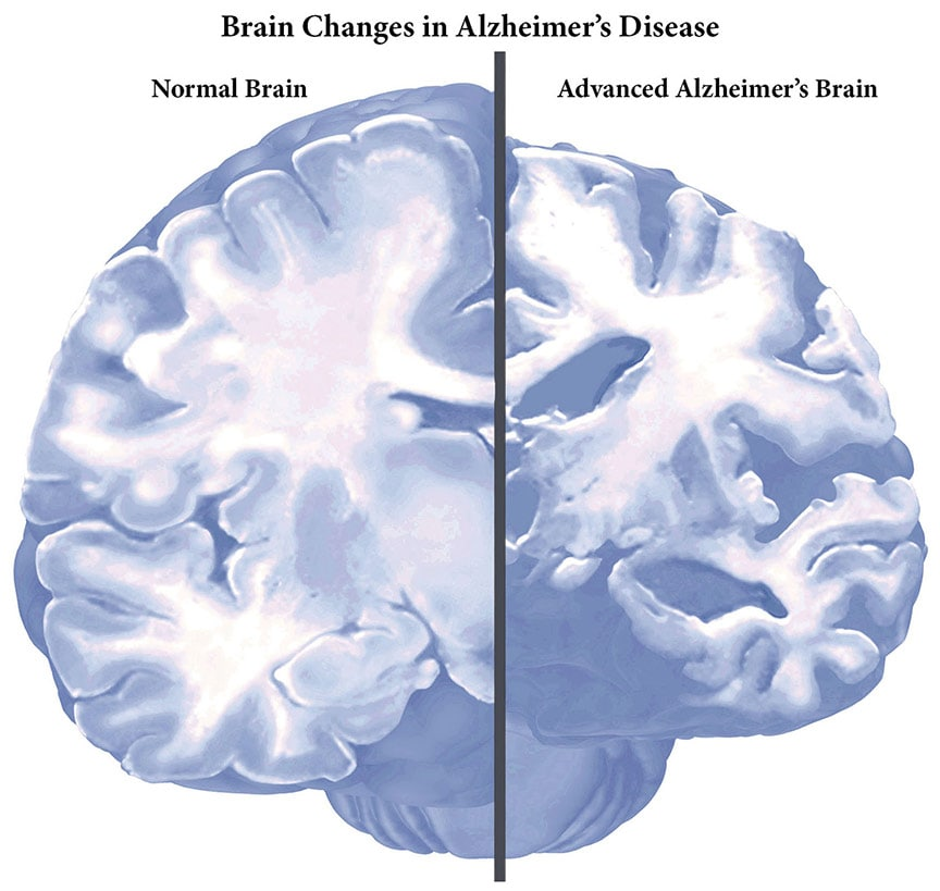Changes in brain