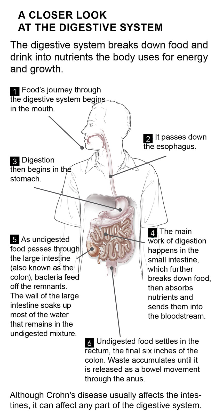 What is crohns disease