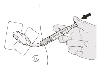Flush the gastrostomy tube with 10 mL to 20 mL of water right after giving the prescribed dose of Evrysdi .image