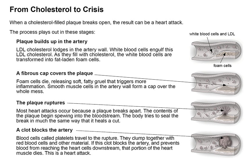 Cholesterol and cardiovascular disease