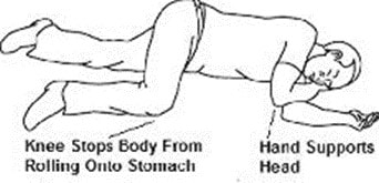Move the person on their side (recovery position) after giving Kloxxado nasal spray.image