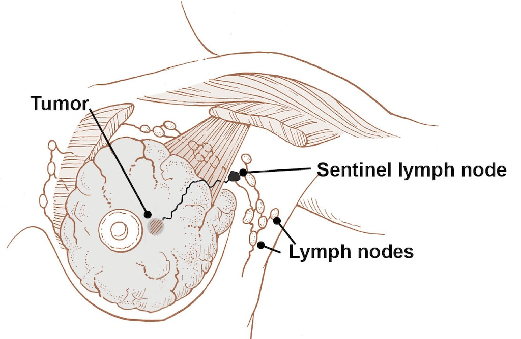 Lymph nodes in the breast