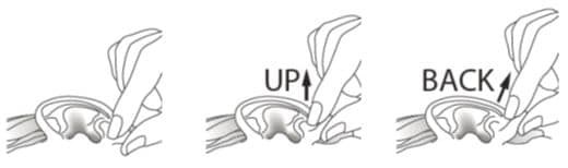 Gently pull the earlobe upward and backward to allow drops to enter the ear canal image.