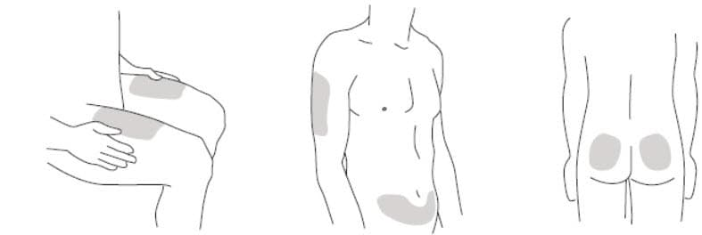 Step 2: Prepare your injection site  Choose an injection site around your stomach area (abdomen), buttocks, and upper legs (thighs). If a caregiver is giving you the injection, the outer area of the upper arms may also be used. Use a different injection site for each injection. Do not give an injection in an area of the skin that is tender, bruised, red or hard. Clean the skin with an antiseptic wipe where you plan to give your injection. Do not touch this area again before giving the injection. Let your skin dry before injecting. Do not fan or blow on the clean area. image