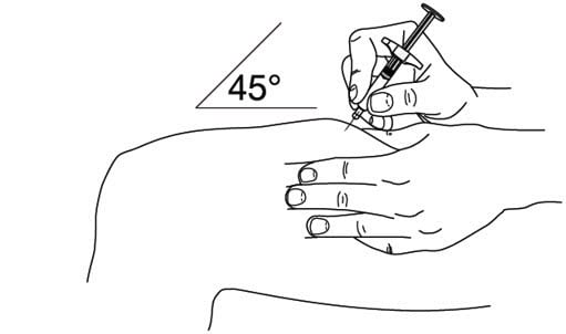 Step 5: Inject Stelara.  Hold the barrel of the syringe in one hand, between the thumb and index fingers. Do not pull back on the plunger at any time. Use the other hand to gently pinch the cleaned area of skin. Hold firmly. Use a quick, dart-like motion to insert the needle into the pinched skin at about a 45-degree angle. image