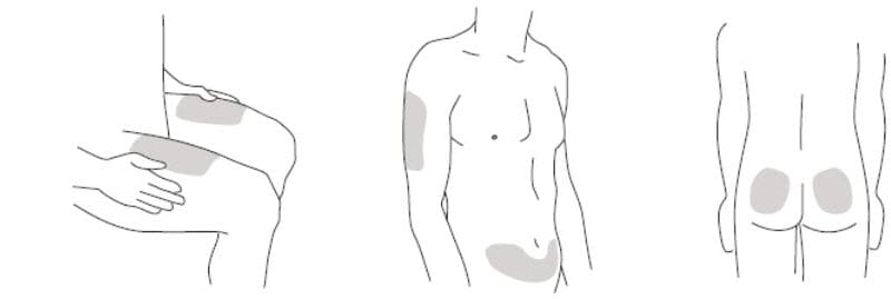 Step 2: Prepare your injection site  Choose an injection site around your stomach area (abdomen), buttocks, upper legs (thighs). If a caregiver is giving you the injection, the outer area of the upper arms may also be used. Use a different injection site for each injection. Do not give an injection in an area of the skin that is tender, bruised, red or hard. Clean the skin with an antiseptic wipe where you plan to give your injection. Do not touch this area again before giving the injection. Let your skin dry before injecting. Do not fan or blow on the clean area. image