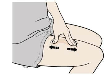 Stretch method to prepare injection site image
