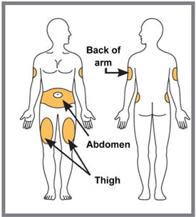 Choose your injection site.   You may inject in your stomach area (abdomen) or in your thigh, or in the back of your arm. To inject in your arm, you will need someone to help you. Do not give an injection into areas where the skin is tender, bruised, red or hard, or in an area of skin that is affected by psoriasis. Do not inject within 1 inch of the navel (belly button). Alternate your injection sites.image