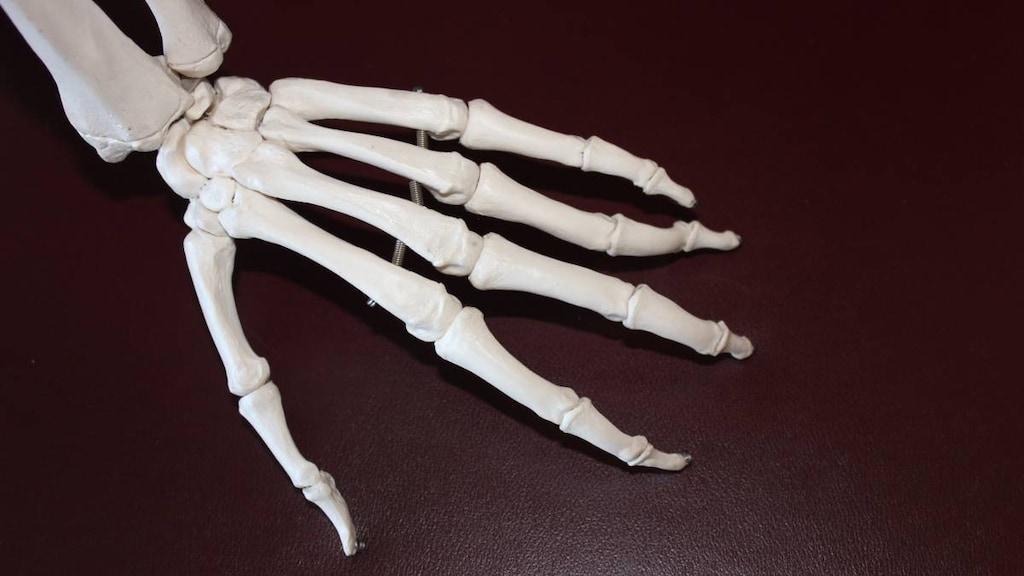 Arthritis flare-up