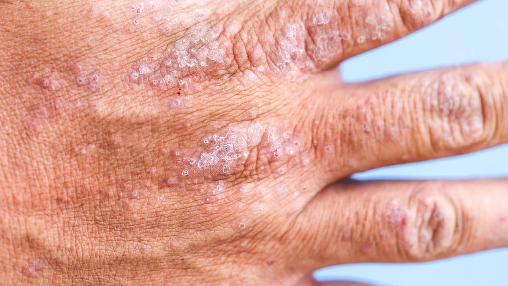 Hand with Atopic Dermatitis