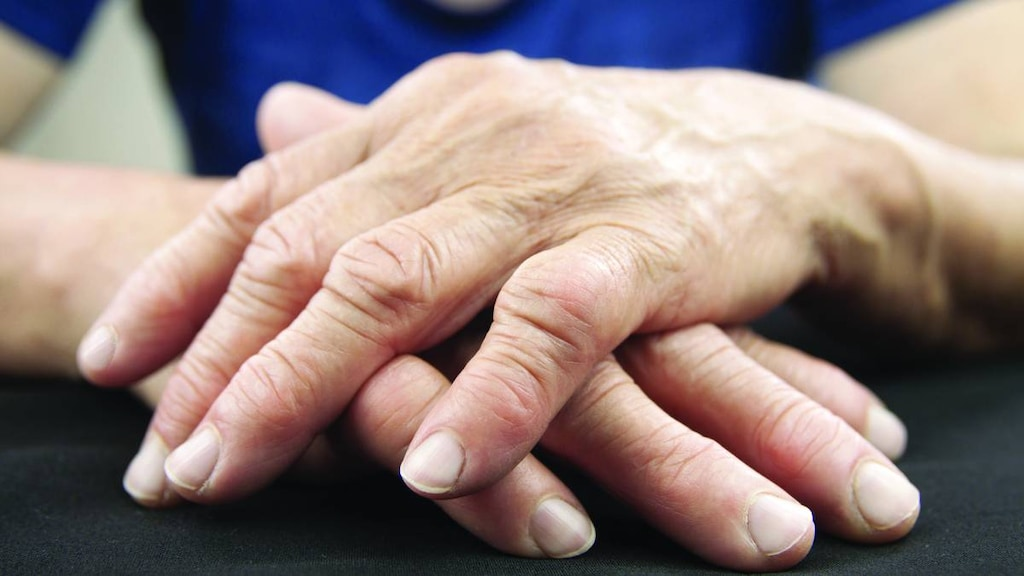 Woman's Deformed Hands from Arthritis
