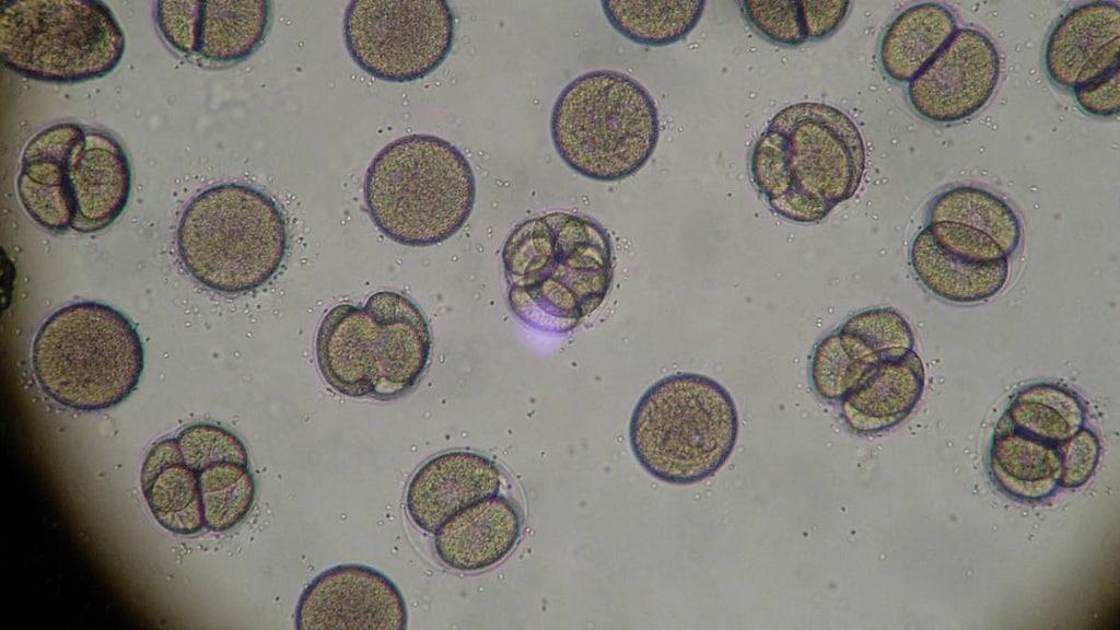 Dividing Cells