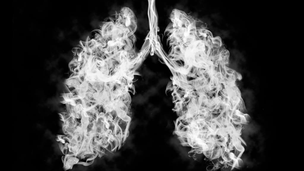 COPD lungs and flare-ups