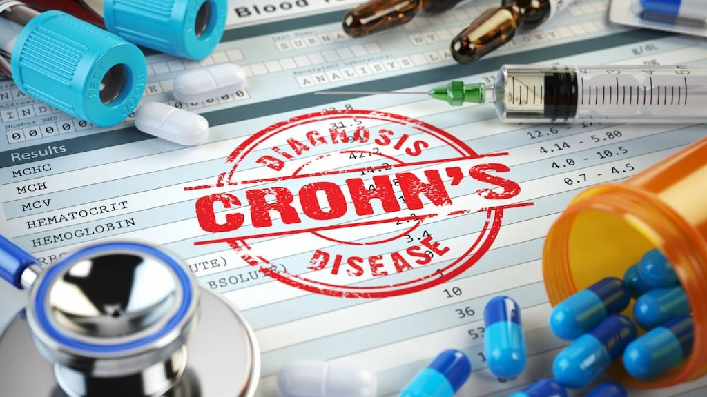 diagnosing crohn's disease