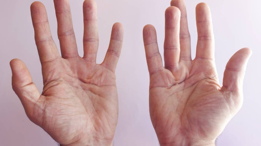 Hands with Dupuytren's Contracture