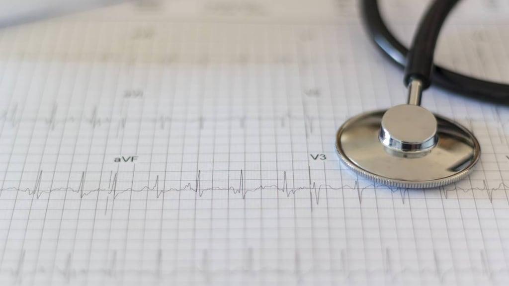 Paroxysmal Supraventricular Tachycardia Psvt Medicine Com