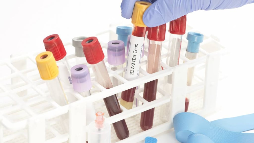 Blood in test tubes