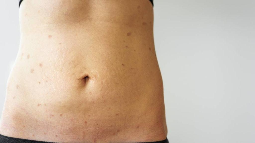 Woman with Lichen Planus on torso