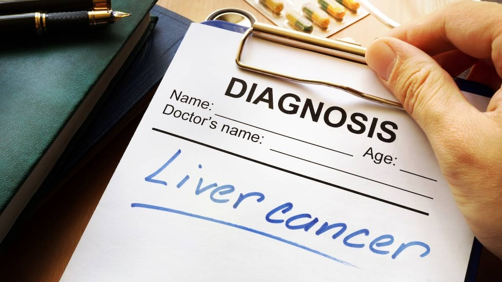Liver cancer words on notepad
