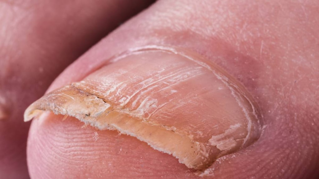 Big toe with nail fungus