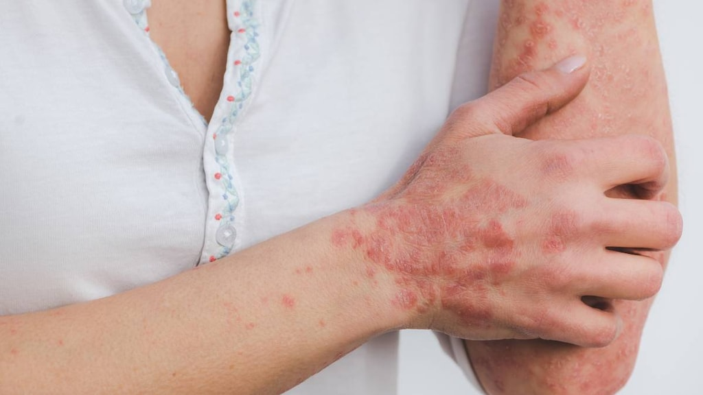 Women with psoriasis on the hand and arm.