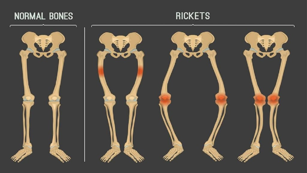 Illustration of Rickets