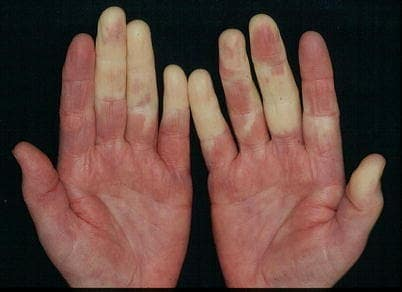 Raynaud Syndrome with Pallor