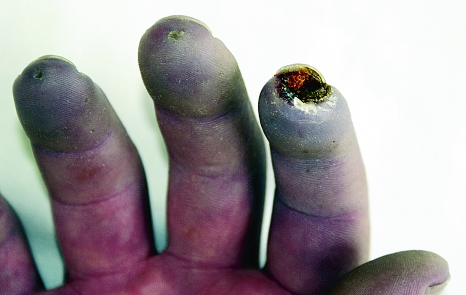 Raynaud Syndrome With Sores on Fingers