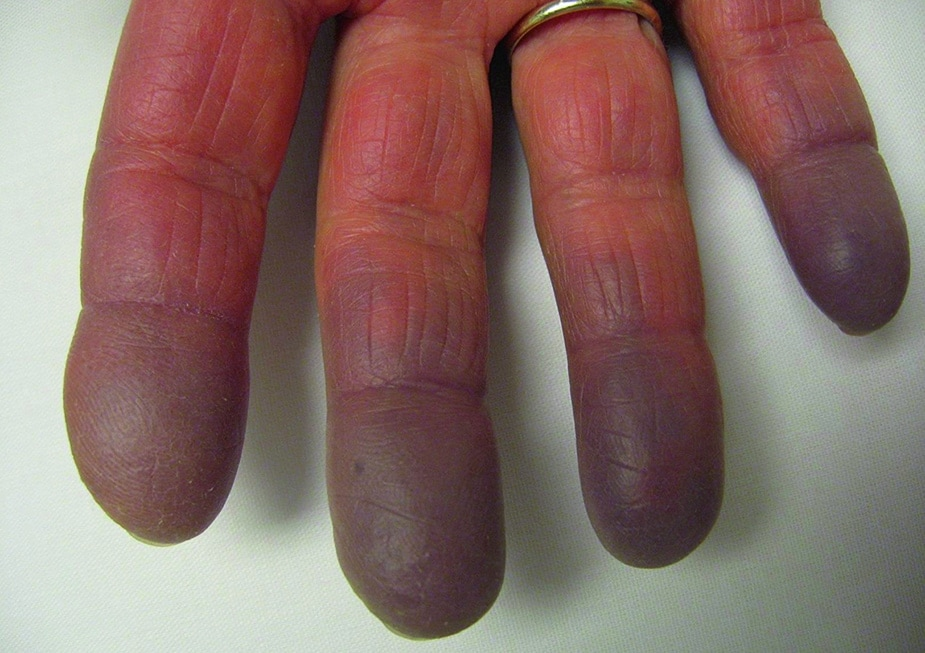 Raynaud Syndrome With Cyanosis