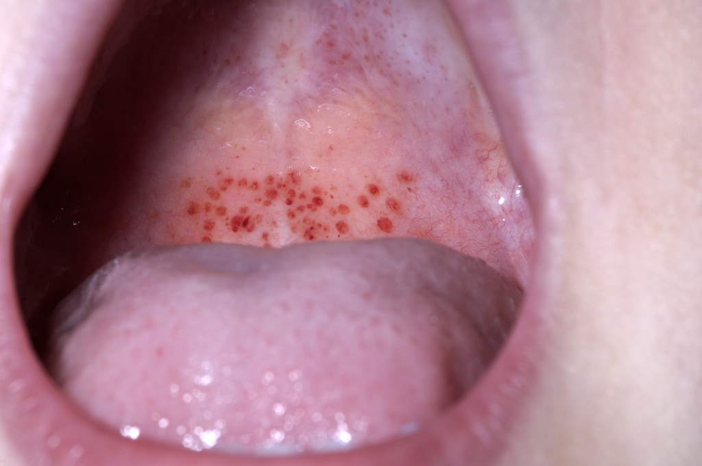 Petechiae (Mouth)