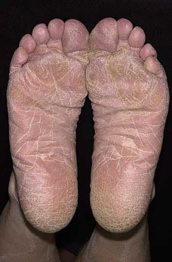 Scaling of the Entire Sole in Athlete's Foot (Tinea Pedis)